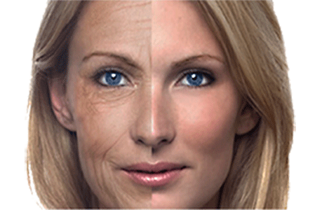 Free Radical Affects on Human Skin Face